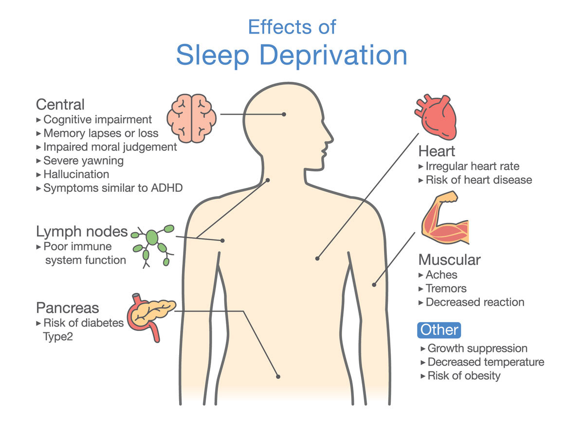 What is Sleep Deprivation?